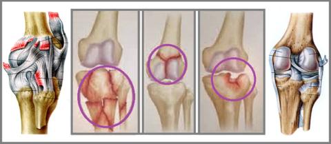 Коленный сустав устроен так, что при его тяжёлых сломах разрыв связок неизбежен