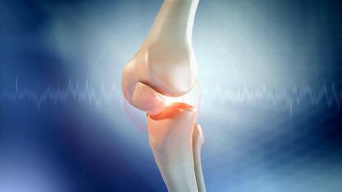 Колено – самое сложное (блок-вращательное) и большое соединение трубчатых костей человека