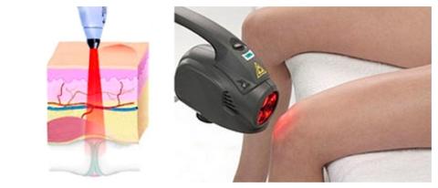 Лазеротерапия поможет избежать возникновения посттравматическогоартроза