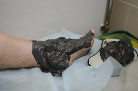 Лечебную грязь можно прикладывать на область голеностопа на 15-20 минут.