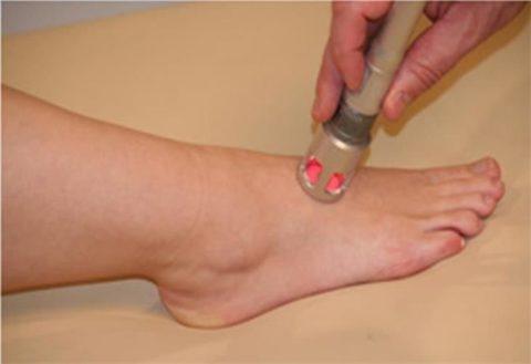 Лечение лучами лазера при переломе плюсны