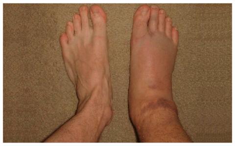Боль, гематома, отёчность стопы, лодыжки и голени – характерные симптомы перелома голеностопа