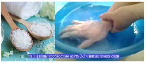 Лечебные ванны с солью при переломах должны быть с высокой концентрацией минерализация, но не более