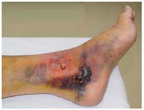 Отёк и фликтены при переломе внутренней щиколотки левой ноги