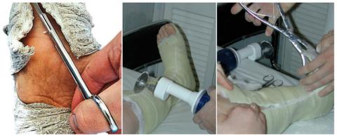 Снимать гипс должен только врач, ножницами Листера или специальными инструментами для полимерных гипсов