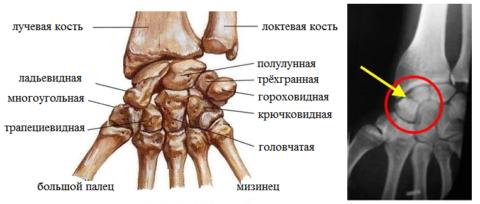 Строение запястья и перелом ладьевидной кости