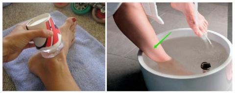 Удачный лайфхак для обтирания льдом и нужный уровень воды для ванночек при переломах голеностопа