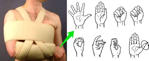 Движения кистью снимают воспаление, боль и отёчность в области сломанной ключицы