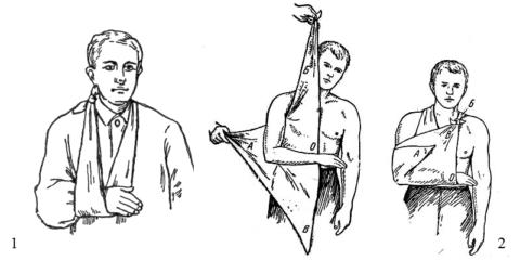 Малая (1) и треугольная (2) перевязи