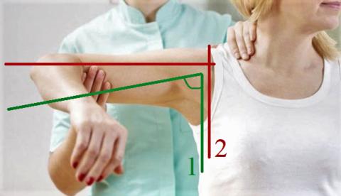 Правильная (1) и запрещённая (2) амплитуда отведения плеча после перелома ключицы