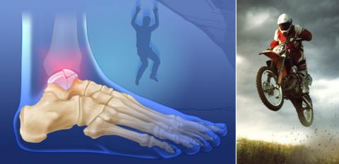 Причины сломов таранной кости – спортивные травмы, ДТП, падения с высоты