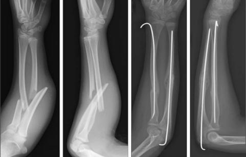 Внутрикостный остеосинтез гибкими спицами костей предплечья у ребёнка 6,5 лет