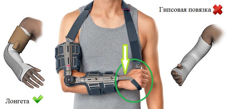 Выбирайте брейс-фиксатор с ограничителем поворотного движения в лучезапястном суставе