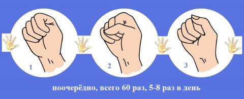 После остеосинтеза локтя отекает рука? Поднимаем её вверх, сжимаем кисть в кулак
