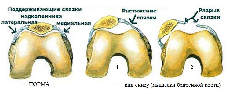 Смещение коленной чашечки – наружный подвывих (1), наружный боковой вывих (2)