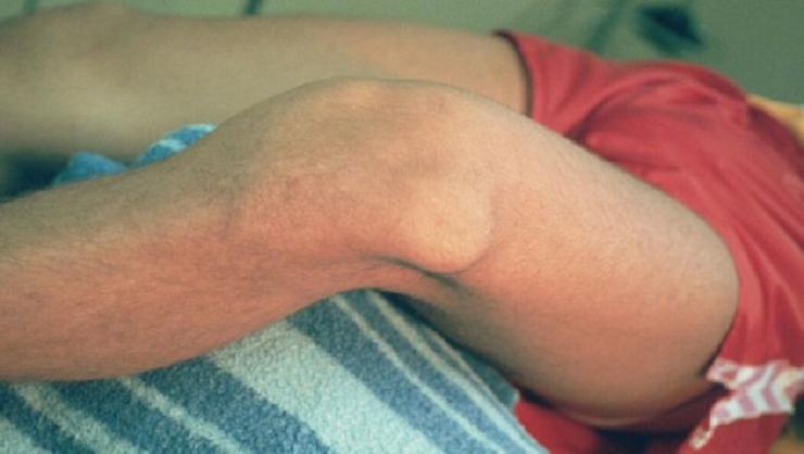Колено слегка согнуто, активные движения невозможны, а пассивные причиняют боль