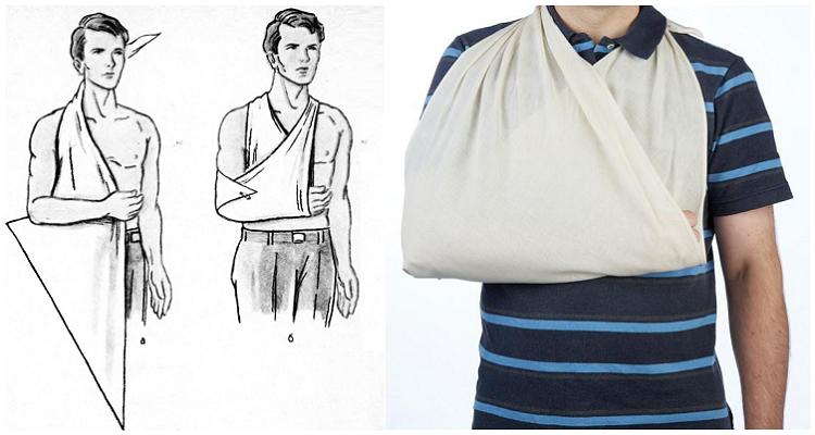 Техника фиксации руки, плеча, ключицы и лопатки с помощью куска ткани