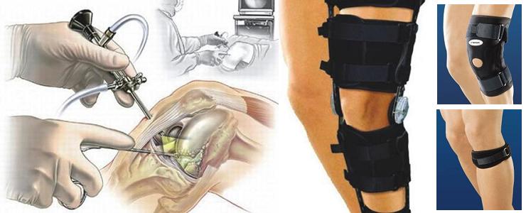 Артроскопия коленного сустава и фиксаторы коленной чашечки для разных этапов лечения