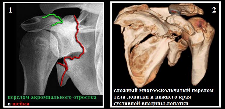 Рентгенография (1) и МРТ (2) повреждения лопаточной кости