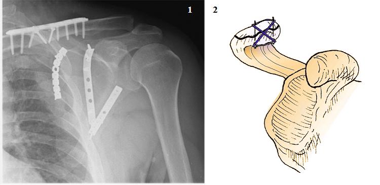 Остеосинтез флотирующего плеча (1) и акромиального отростка (2)