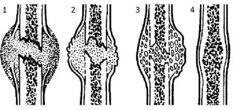 Схематичное изображение стадий регенерации перелома трубчатой кости