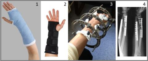 Виды лечебной иммобилизации – гипс (1), ортез (2), аппарат Илизарова (3), остеосинтез (4)