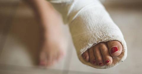 Чтобы снять отечность сломанной щиколотки, надо как можно чаще шевелить пальцами