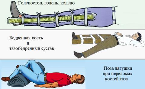 Иммобилизация сломанной ноги или таза.