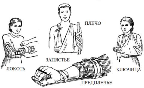Способы иммобилизации в зависимости от локализации травмы