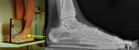 Для подтверждения некоторых видов сломов необходимо сделать рентген с нагрузкой