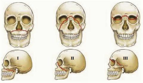 Ле Фор I или перелом Герена-Лефора, Ле Фор II, Ле Фор III или полное черепно-лицевое разъединение