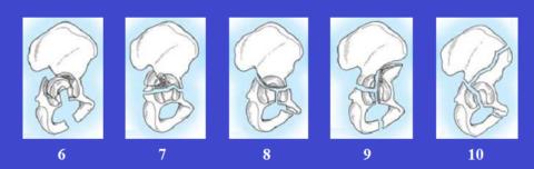 Сложные сломы тазовых костей, образующих вертлужную впадину