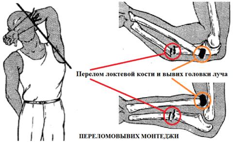 В классификации переломов выделяют отдельный тип повреждения – переломовывих
