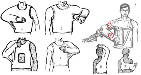 На фрагменте 5 – вытяжение диафизарного излома плеча и фиксация сломов локтевой и лучевой кости