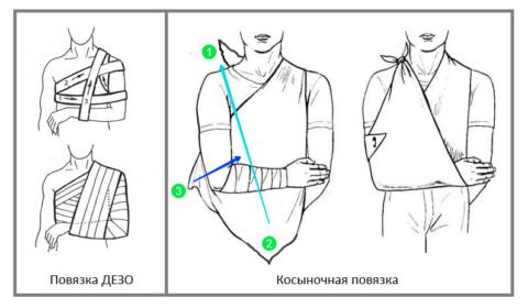 Транспортная повязка на плечо при переломе предотвращает усиление болевого синдрома