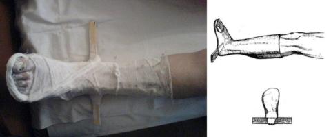 Деротационное приспособление для голеностопа из планки, бинтов и гипса