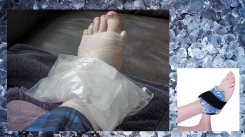 Экстренное «замораживание» отека сразу же после перелома остановит его рост и притупит боль