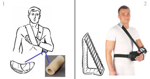 Особенности иммобилизации при разных видах повреждений хирургической шейки плеча