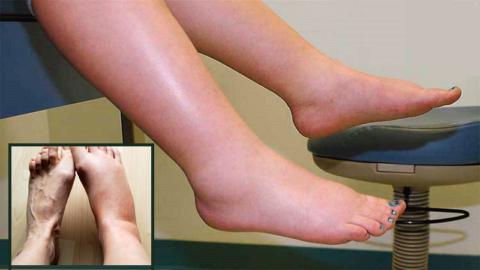 Отечность стопы после ее перелома может возникать в течение длительного времени – до 12-18 месяцев