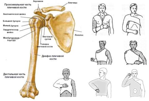 Разновидность гипсовой повязки зависит от области повреждения