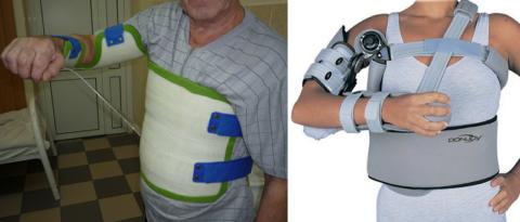 Разновидность отводящих ортезов при сломах плечевого диафиза