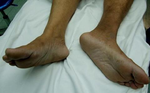 Типичная клиническая картина после слома шейки бедренной кости
