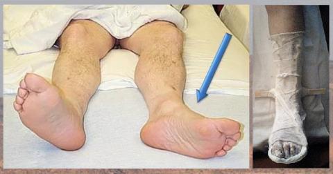 Гипс на перелом шейки бедра не накладывают, а фиксируют голеностопный сустав