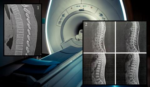 КТ (1) и часть МРТ-снимков (2) 12-летнего пациента
