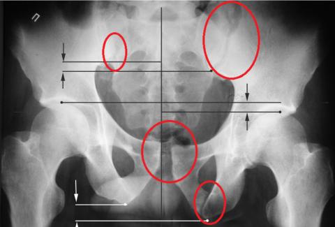 Полипроекционная обзорная рентгенограмма