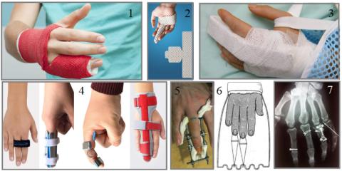 Современные фиксаторы при переломе пальца руки
