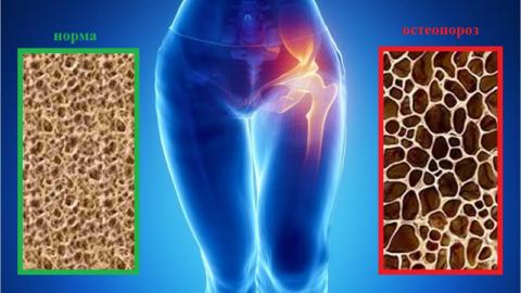 В 93 % случаев трещин или сломов шейки бедра повинен остеопороз костной ткани