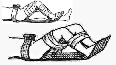Варианты транспортной иммобилизации при травмах тазовой области и бедра