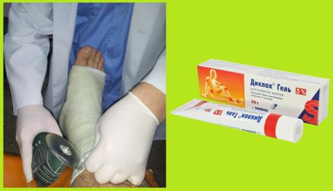 Препарат №1 при реабилитации после перелома: цена доступна, снятие боли гарантировано