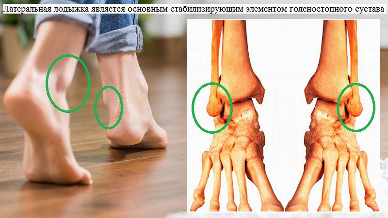 Наружная (латеральная) щиколотка или лодыжка – это дистальный отдел м. берцовой кости